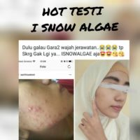 isnow algae anti jerawat